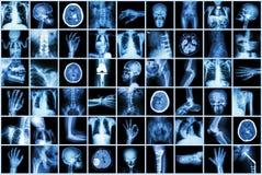 X射线辐射成人和孩子和疾病(肺结核冲程肾结石骨关节炎骨折肠的多个部门 免版税库存图片