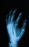 X射线辐射断手,倾斜看法的图象 库存图片