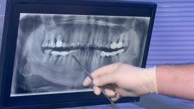 X射线辐射牙和一只牙医` s手的全景图片有工具移动的横跨屏幕 影视素材