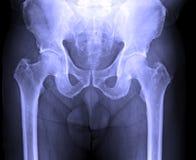 X射线辐射男性人的脊椎,裂口,骨盆的图象 库存图片