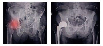 X射线辐射痛苦的臀部的图象在妇女礼物破裂权利上弦与斜端杆结点的在红色区域标记 库存图片
