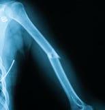 X射线辐射肱骨破裂, AP视图的图象 免版税库存照片