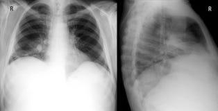 X射线辐射肺前面和正确的侧向proection 显示大渗入在右肺的中间耳垂 肺炎 免版税库存照片