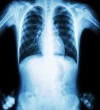 X射线辐射胸口(两手插腰的位置) (正面图) 图库摄影