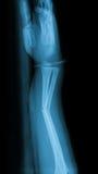 X射线辐射破裂前臂和木藤条的图象 免版税库存图片