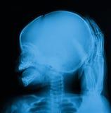 X射线辐射头骨的图象,一个哭泣的婴孩用父母手 免版税库存图片