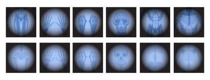 X радиология Рэй иллюстрация вектора