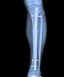 X Рэй ноги с трещиноватостью и implant Стоковые Фотографии RF