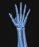 X Рэй правой руки с implant Стоковые Фото