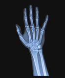 X Рэй руки Стоковые Изображения
