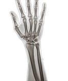 X Рэй руки Стоковая Фотография