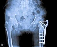 X Рэй таза с косточкой бедренной кости трещиноватости Стоковое Изображение RF