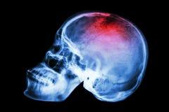 X-射线与冲程的头骨侧面 图库摄影