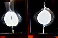 X-射线乳房X线照片 库存图片