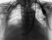 X-射线作为一个医疗背景 免版税图库摄影