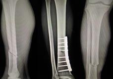 X-射线展示破裂腿胫骨和腓骨 免版税库存照片
