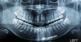 X-射线扫描人 库存照片