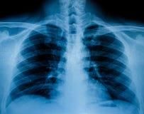 X-射线扫描人 库存图片