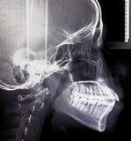 X-射线扫描人 免版税库存照片