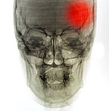 X-射线扫描人 图库摄影