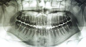 X-射线牙的扫描人 库存图片