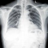 X-射线胸口影片 图库摄影