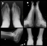 X-射线脚 库存图片