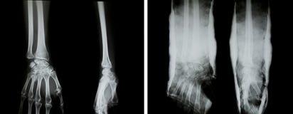 X-射线(正常胳膊和胳膊有藤条的) 免版税库存照片