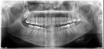 X-射线 库存照片