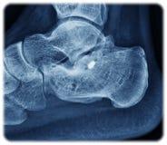 X-射线calcaneus 库存照片