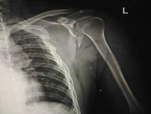 X-射线showder 免版税库存图片