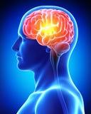 在蓝色X-射线的男性脑子 免版税库存图片