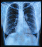 Εικόνα θωρακικής ακτίνας X Στοκ φωτογραφία με δικαίωμα ελεύθερης χρήσης