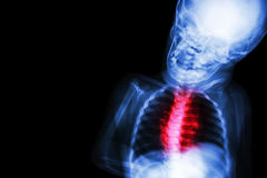 X-射线儿童的身体以先天心脏病 免版税库存照片