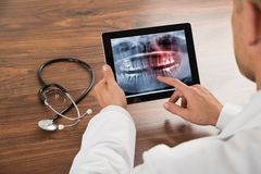 Γιατρός που εξετάζει την ανθρώπινη ακτίνα X δοντιών Στοκ εικόνες με δικαίωμα ελεύθερης χρήσης