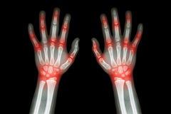 风湿性关节炎、痛风关节炎(影片X-射线孩子的两只手有医疗多联合的关节炎的) (科学和他 免版税图库摄影