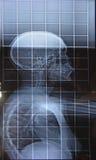 Ακτίνα X της κάθετης στάσης νωτιαίου μυελού στοκ εικόνα