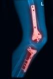 X avbildar lägger benen på ryggen strålar det brutna lår och med implantatet Royaltyfri Bild