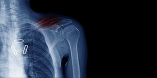 X-image and banner design of shoulder in blue tone. With black background, clavicle fracture x-ray image royalty free stock photos