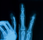 X-image of hand, AP and lateral view. Stock Photo