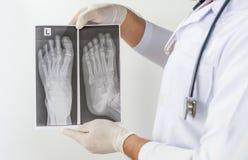 X raggio della vista frontale del piede, medico che guarda la lastra radioscopica del petto, anatomia immagini stock