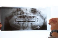 X-ray Royalty Free Stock Photography