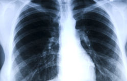 X-ray. Photograph of the thorax and lungs stock photo