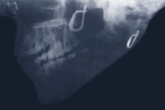 X-ray Royalty Free Stock Image