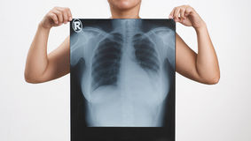 X-ray Royalty Free Stock Photo
