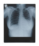 X-ray. Image isolated on white background Royalty Free Stock Photos