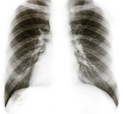 X-ray. Image of chest bones isolated on white royalty free stock images