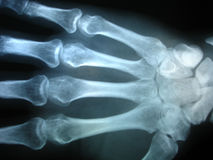 X-ray. Hand x-ray Stock Photography