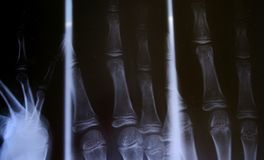 X-ray. Of fractured fingers Stock Images