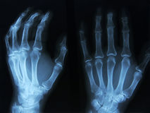 X-ray. X-ray of human left hand Royalty Free Stock Photography